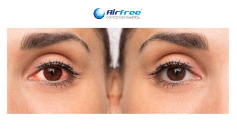 Podrażnienie oczu – gdzie doszukiwaćsięprzyczyn?
